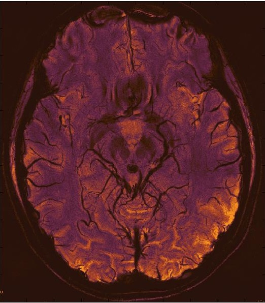 """ The Black Widow"" 7T SWI mIP image of the brain."