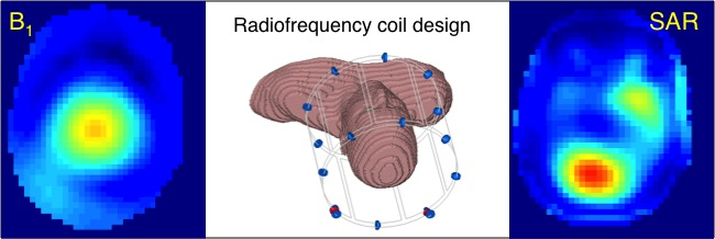 Radiofrequency Coils